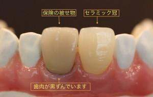 歯肉の黒ずみ-300x190
