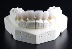 tooth-replacement-759929_1280-300x205